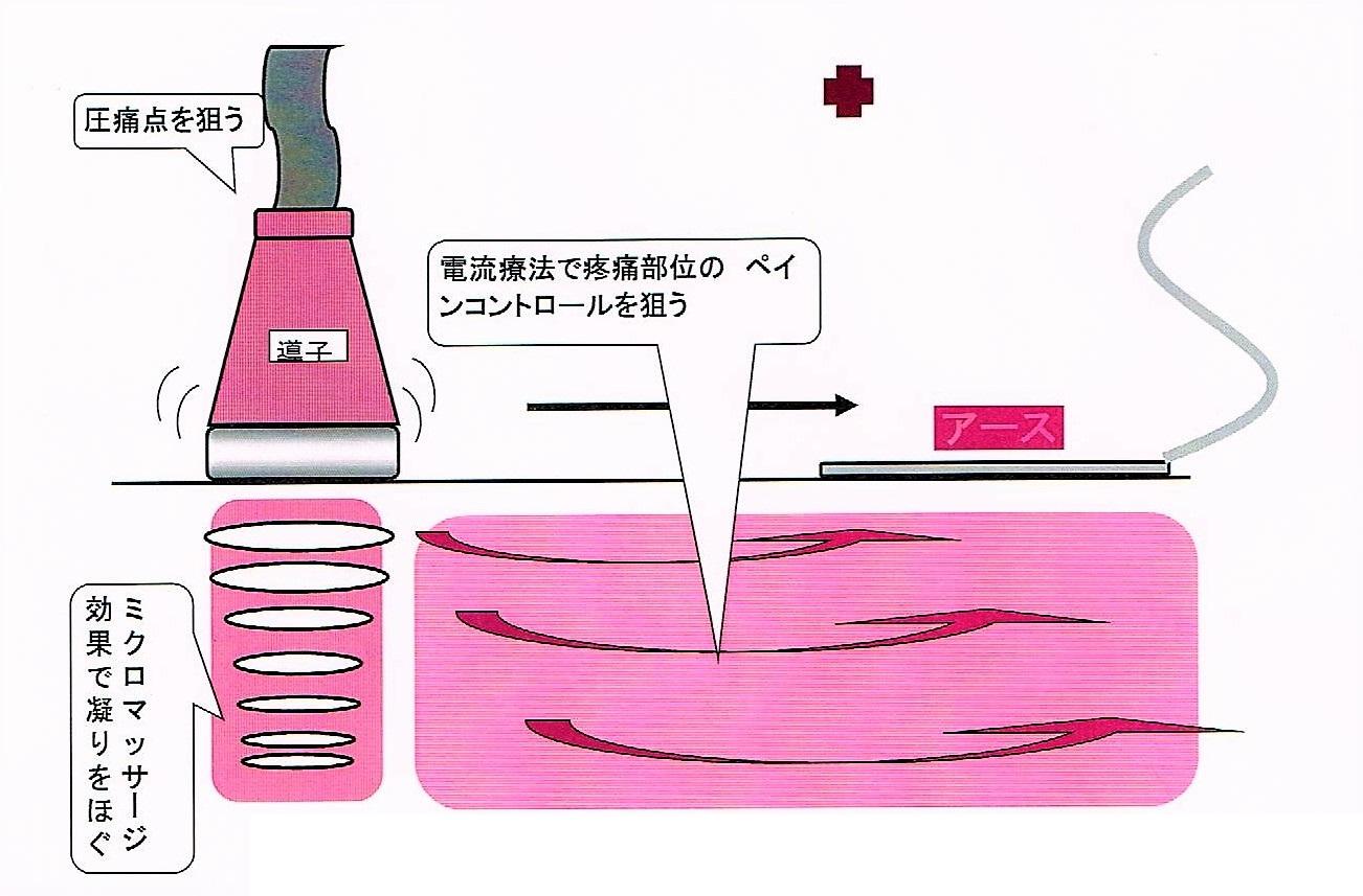 "img src=""cyouon.jpeg"" alt=""江井ヶ島でこの1台。超音波コンビネーション治療の説明"""
