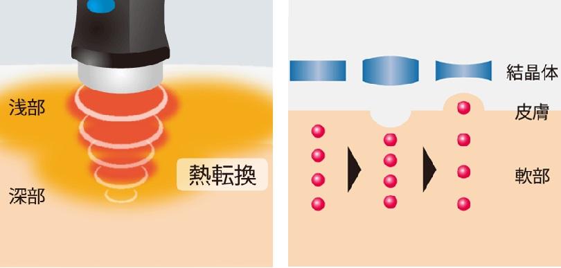 """img src=""""cyouon2.jpg"""" alt=""""江井ヶ島でこの1台。超音波治療の効果をわかりやすく説明"""""""