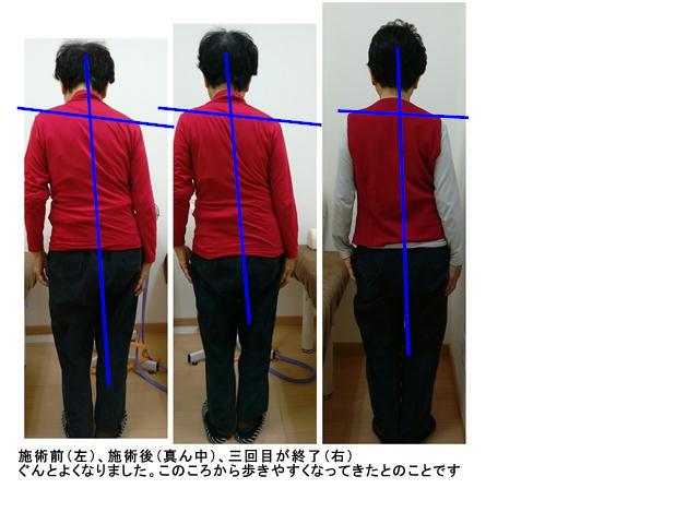 """img src=""""image29.JPG"""" alt=""""江井ヶ島で評判のあかねがわ整骨院での骨盤調整前と後の比較"""""""