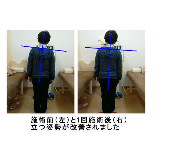 """img src=""""image30.JPG"""" alt=""""江井ヶ島で評判のあかねがわ整骨院での骨盤調整前と後の比較2"""""""
